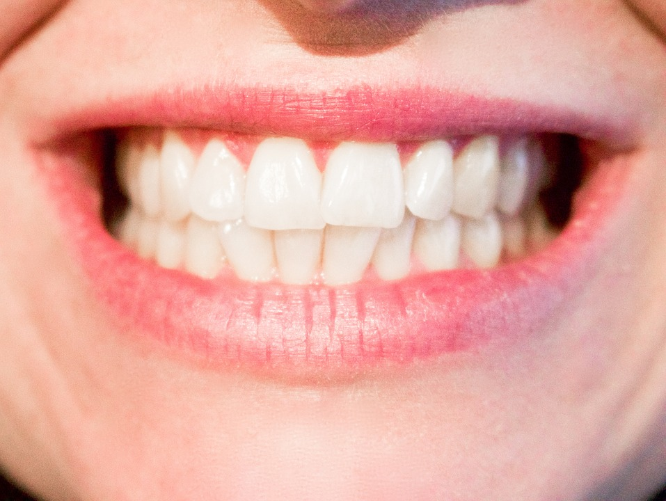 white teeth health
