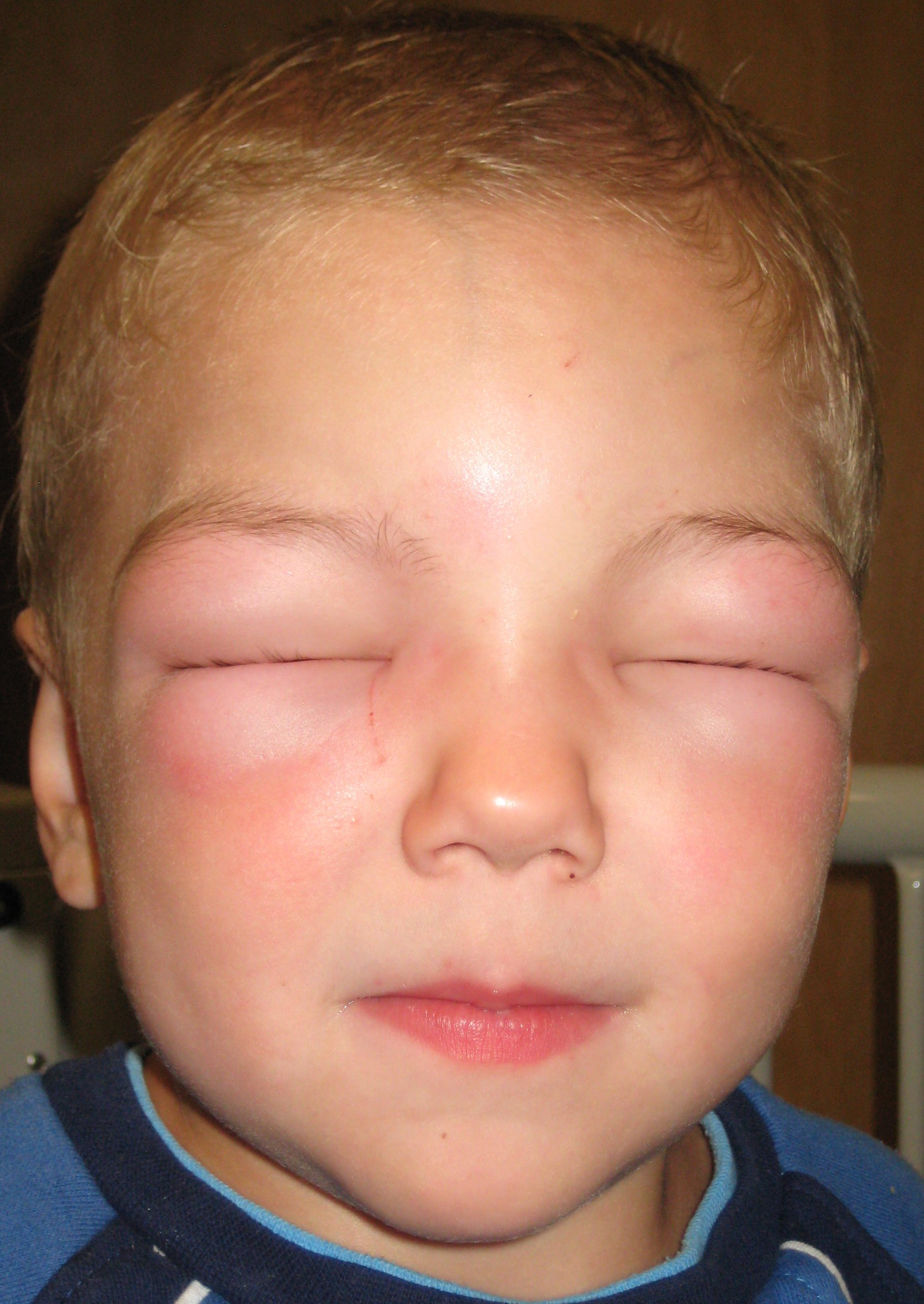 Get Rid Of Eczema On Your Eyelids Without Side Effects!