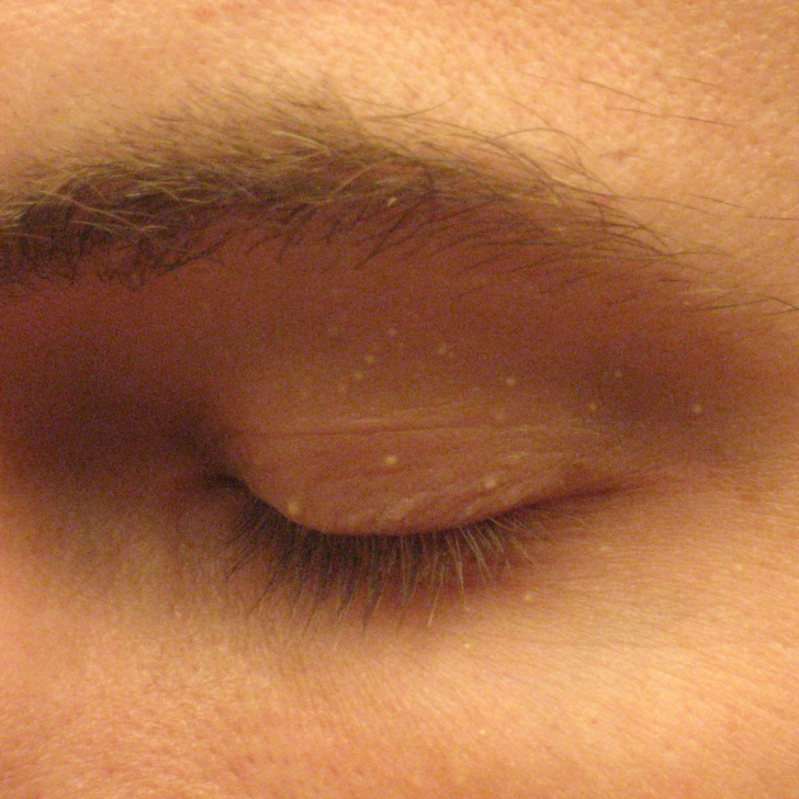 eczema eyelids closed
