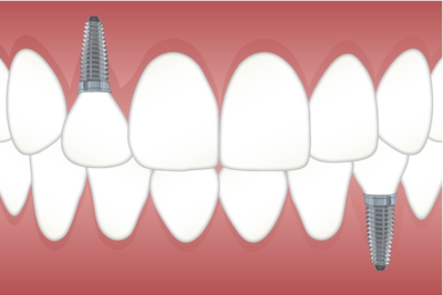 Why dental charting is important?