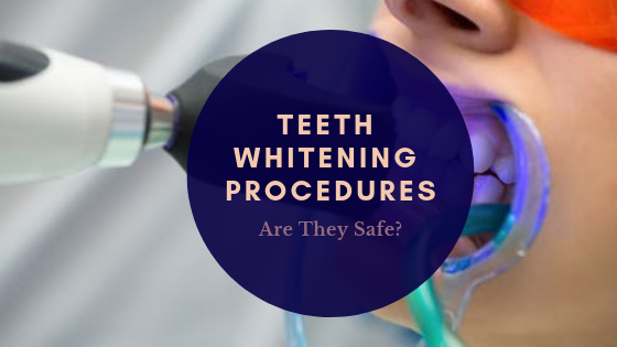 Teeth Whitening Procedures - Are They Safe?
