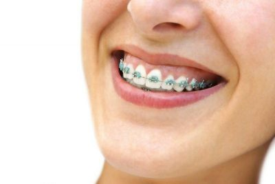 How Does the Invisalign Treatment Process Work?