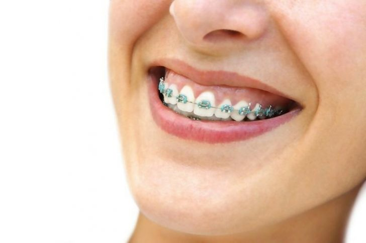 How Does the Invisalign Treatment Process Work