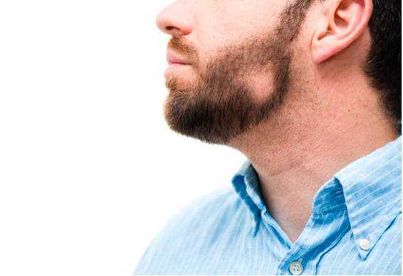 How To Get Rid of Patchy Beards In 3 Ways (2019 Guide)