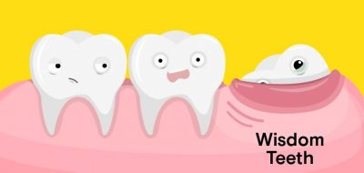 Wisdom Lies in Getting a Dental Insurance Plan