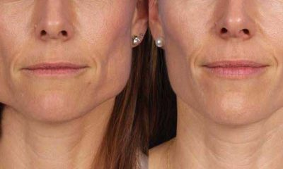 Masseter-Reduction