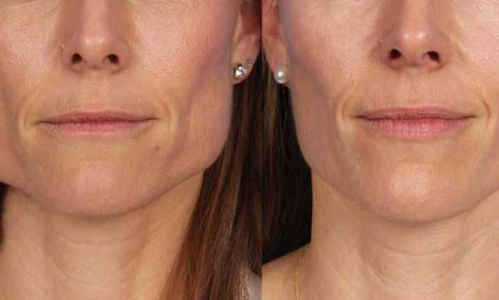 Masseter Reduction: Is It Right for Me?