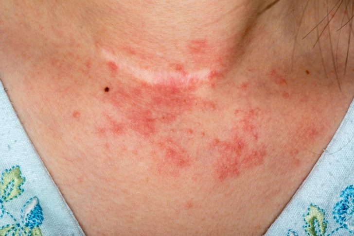 Benefits to Using Sond Skincare if You Have Eczema