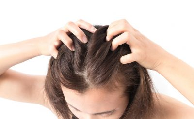 How to Prevent Lice and Head Itchiness? 5 Key Things You Must Know