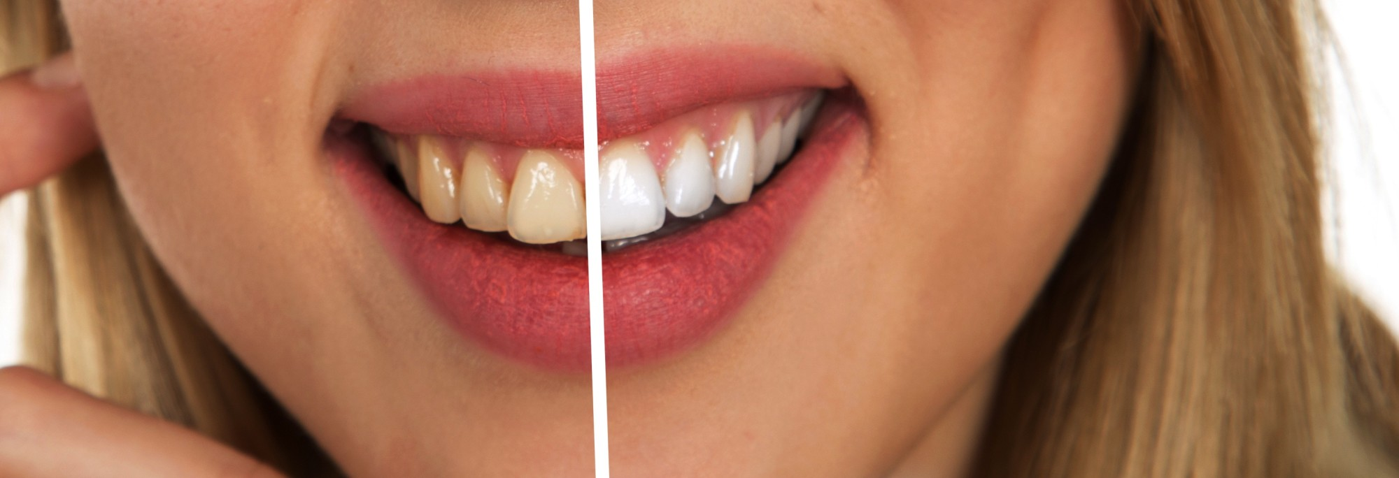 How to Get Super White Teeth: 4 Amazing Secrets