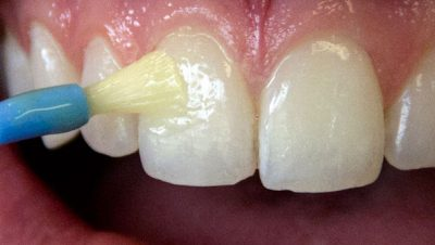 Is Fluoride Varnish Safe