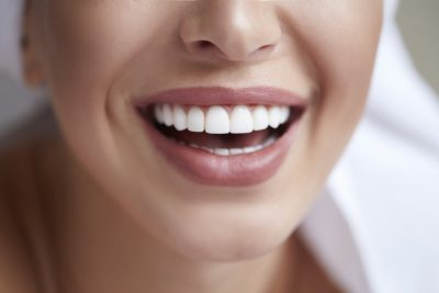 How to Straighten Crooked Teeth