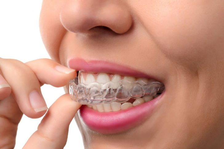 Invisalign Teeth Straightening – The Benefits Of Invisalign Braces