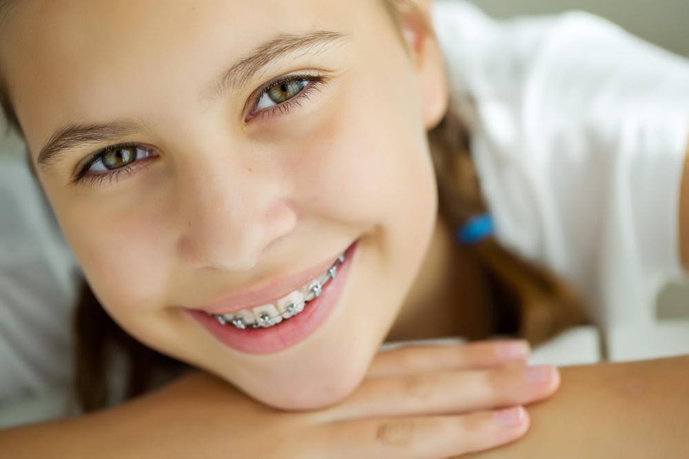 wearing braces