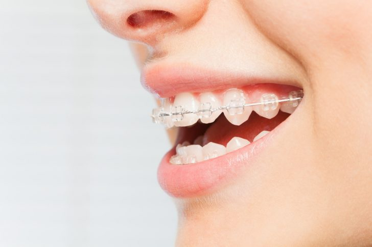 Are Braces Worth It for Adults? 4 Reasons the Answer Is Yes