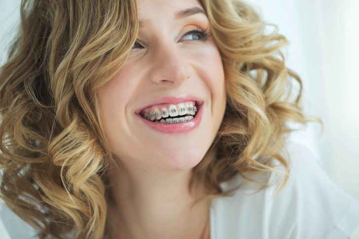 Brace This: How to Get Braces For Adults (Without Insurance!)