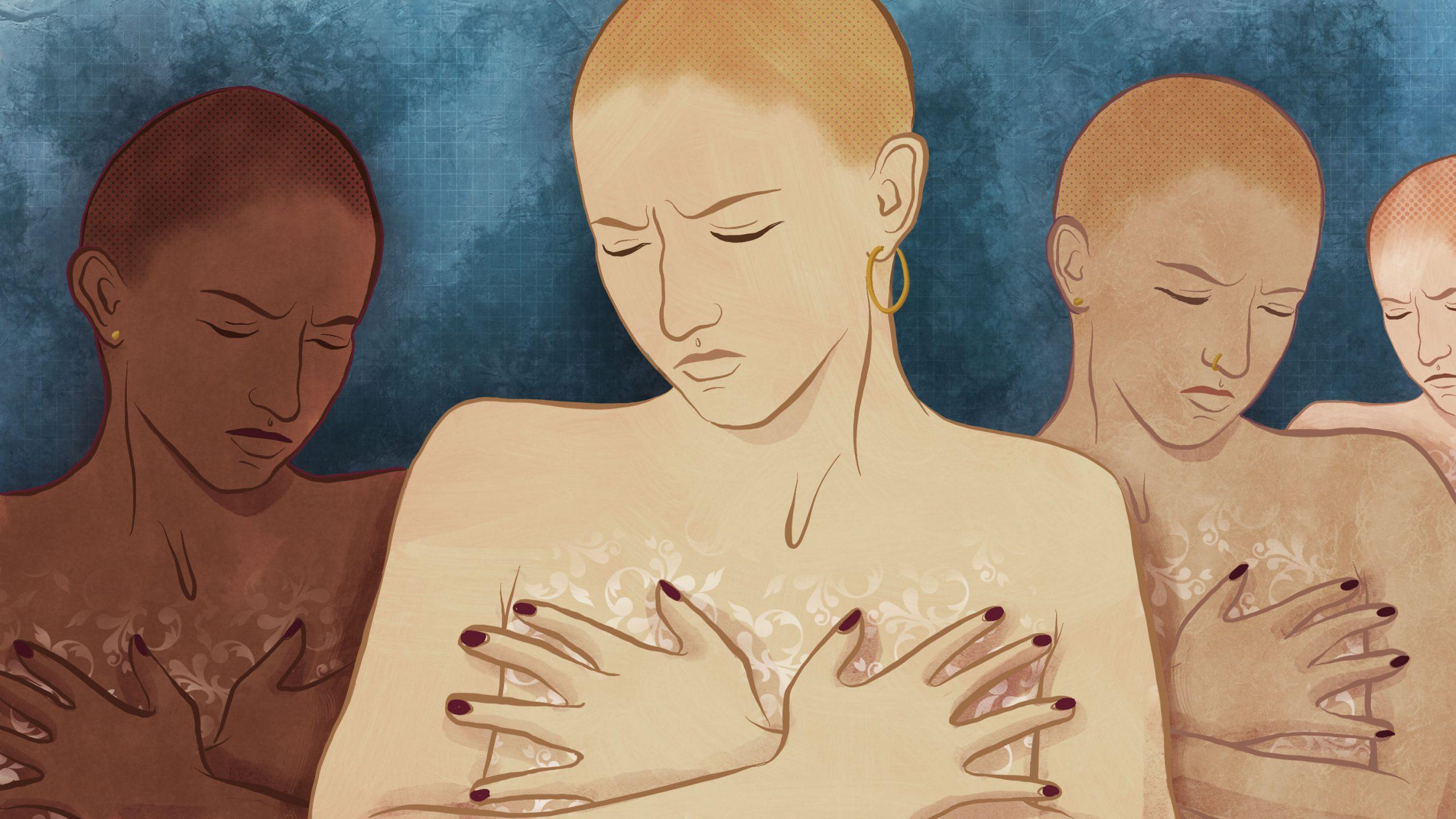 BreastCancerSurgeryOptions_Illustration_MollyFerguson_082817
