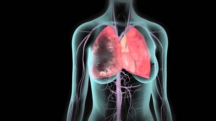 What are the Signs of a Pulmonary Embolism and Treatment Options