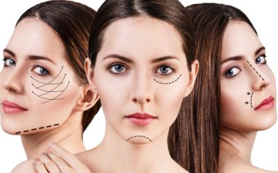 All You Need To Know About Chemical Peels Toronto