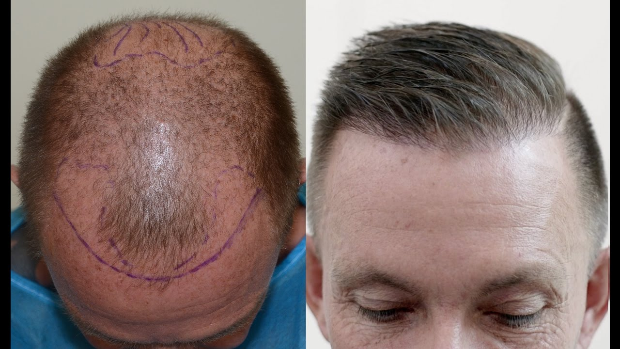 BUSTING MYTHS ABOUT HAIR TRANSPLANT