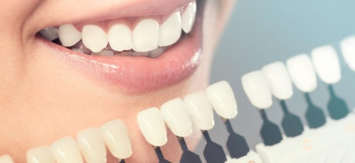 Fillings For Your Teeth: The Complete Guide You Need to Know