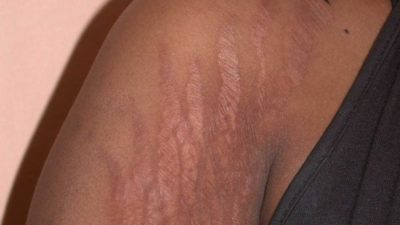 Can stretch marks be removed?