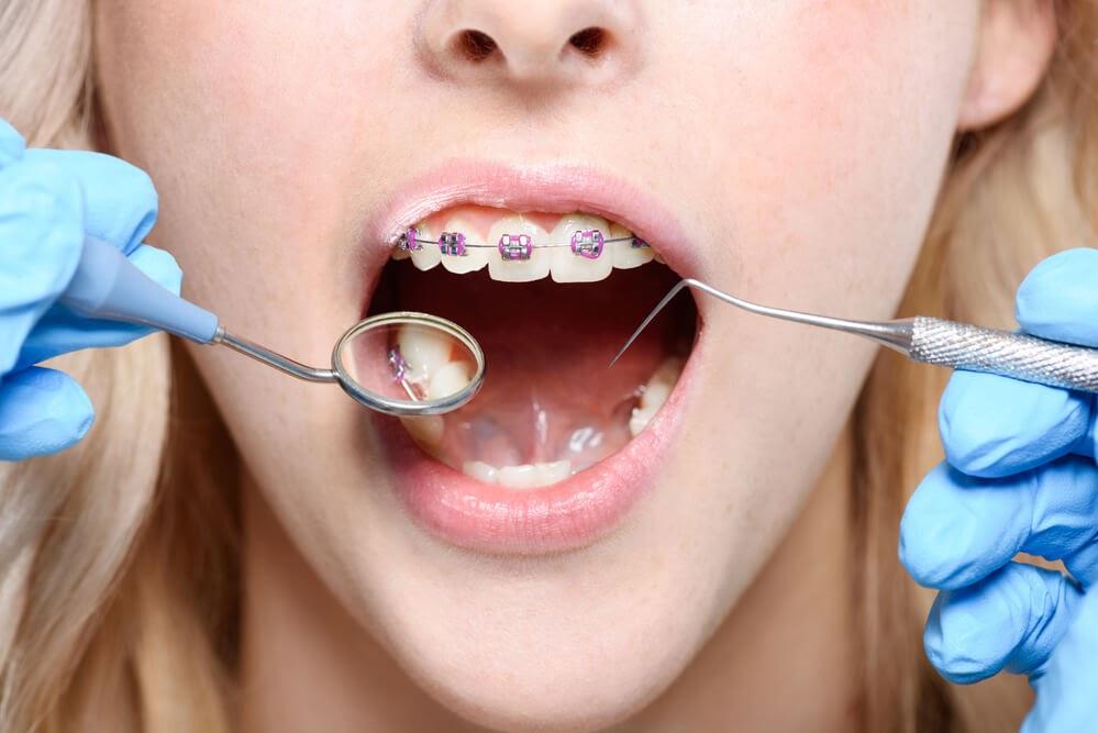 Treating Crowded Teeth