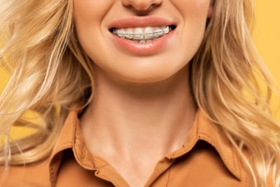 Everything You Need to Know About Crowded Teeth