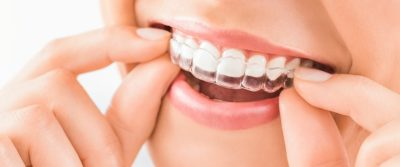 Reasons to Choose Invisalign