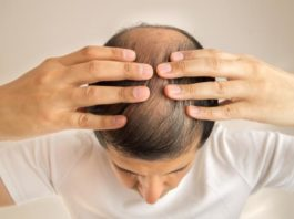 minoxidil hair loss treatment