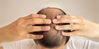 minoxidil hair loss treatment