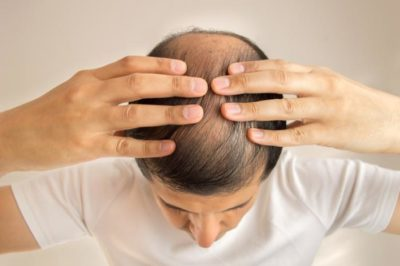 A Beginners Guide To Minoxidil For Male Pattern Baldness