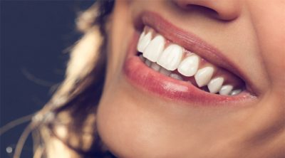 Top Teeth Whitening Trends You Should Try