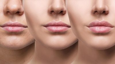 3 Things You Should Know About Getting Lip Fillers