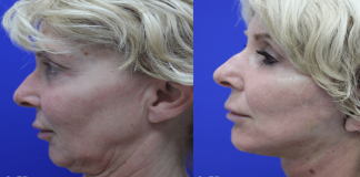 women turning to mini-facelifts