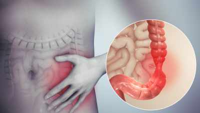 main causes of Irritable Bowel Syndrome