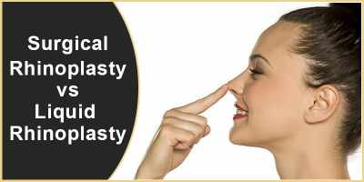 Surgical Rhinoplasty vs. Liquid Rhinoplasty