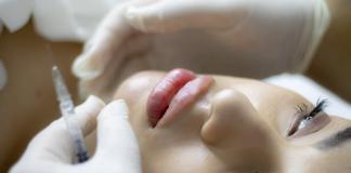Best Types Of Dermal Fillers